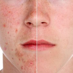 Removing Blemishes Technique
