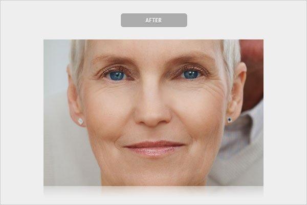 After Removing Wrinkles