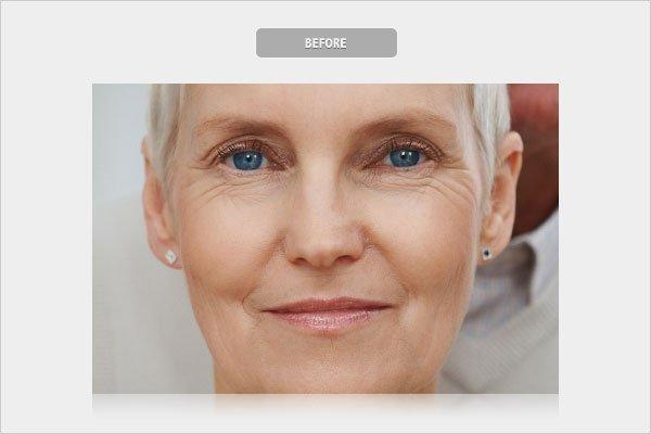 Before Removing Wrinkles