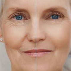 Removing Wrinkles Techniques