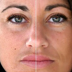Image Editing - Skin Retouching