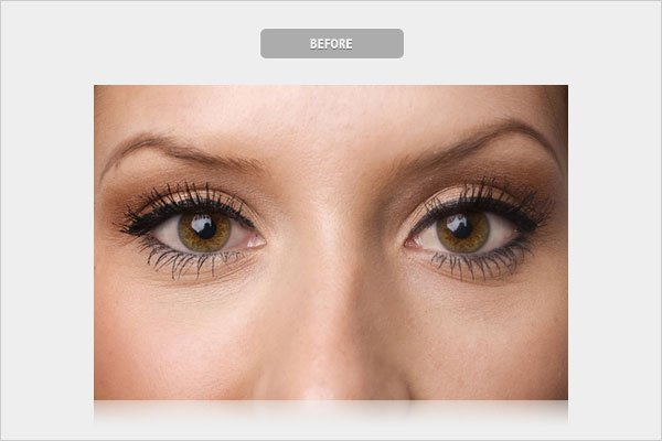 Before Whitening Eyes