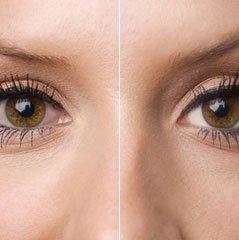 Whitening Eyes Image Editing Technique