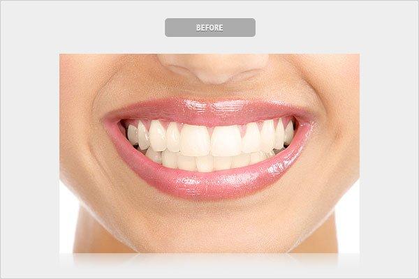 Before Whitening Teeth