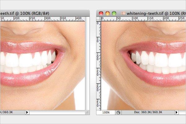 Whitening Eyes Teeth 4