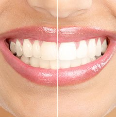 Whitening Teeth Image Editing Technique