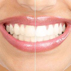 Whitening Teeth Image Editing Technique